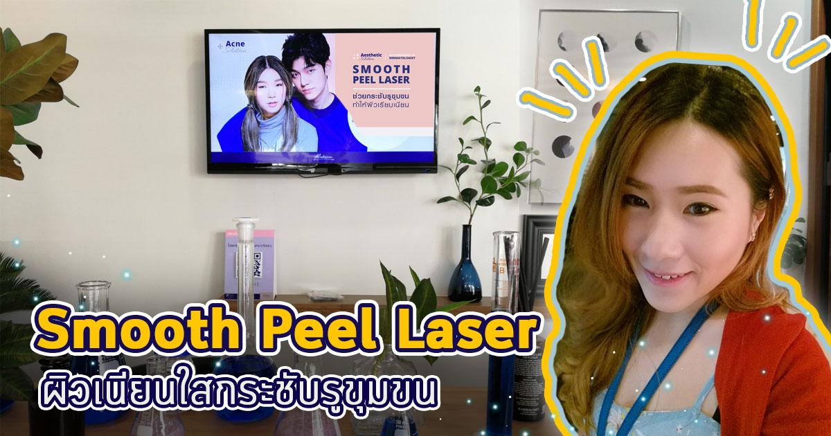 Smooth-Peel-Laserวิธีกระชับรูขุมขน-เลเซอร์หน้าเนียนใส-พรเกษมคลินิก